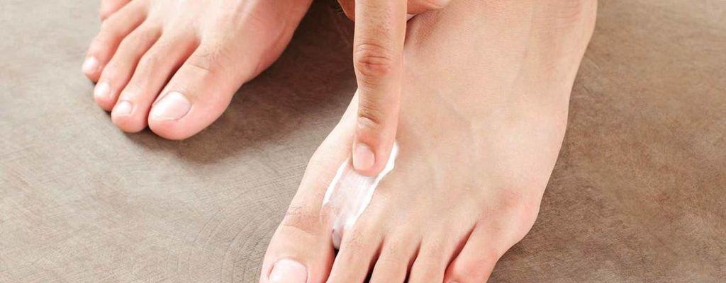 Как лечить грибок между пальцами ног: советы специалистов